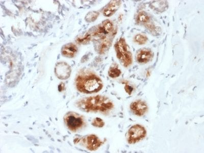 Formalin-fixed paraffin-embedded human Breast Carcinoma stained with Monospecific Mouse Monoclonal Antibody (MGB1/2000) to Mammaglobin.