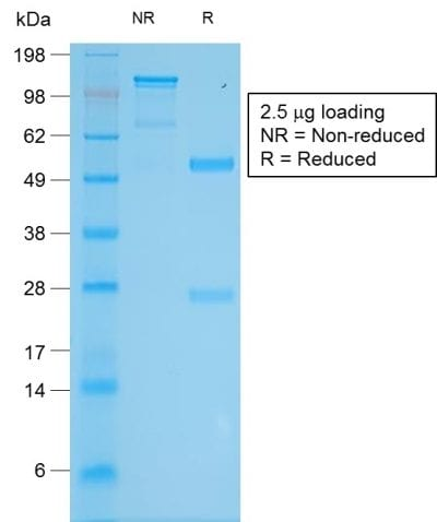 SDS-PAGE Analysis Purified Tyrosinase Rabbit Recombinant Monoclonal Antibody (TYR/2024R). Confirmation of Purity and Integrity of Antibody.