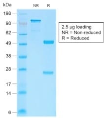 SDS-PAGE Analysis Purified Beta-Catenin Recombinant Rabbit Monoclonal Ab (CTNNB1/2030R). Confirmation of Purity and Integrity of Antibody.