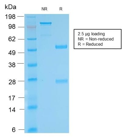SDS-PAGE Analysis Purified anti-biotin Rabbit Recombinant Monoclonal antibody (BTN/2032R). Confirmation of Purity and Integrity of Antibody.