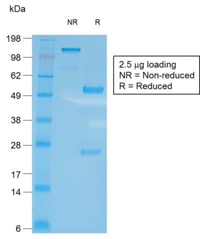 SDS-PAGE Analysis of Purified CD27 Rabbit Recombinant Monoclonal Antibody (LPFS2/2034R). Confirmation of Purity and Integrity of Antibody.