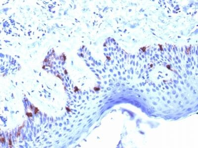 Formalin-fixed paraffin-embedded human Skin stained with gp100 Mouse Monoclonal Antibody (PMEL/2039).