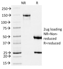 SDS-PAGE Analysis Purified gp100 Mouse Monoclonal Antibody (PMEL/2039).Confirmation of Purity and Integrity of Antibody.