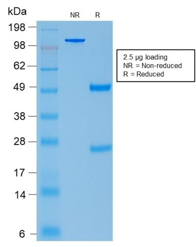 SDS-PAGE Analysis Purified ACTH Rabbit Recombinant Monoclonal Antibody (CLIP/2040R). Confirmation of Purity and Integrity of Antibody.