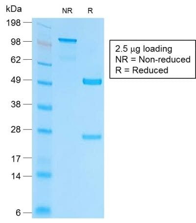 SDS-PAGE Analysis Purified EpCAM Rabbit Recombinant Monoclonal Antibody (EGP40/2041R). Confirmation of Purity and Integrity of Antibody.