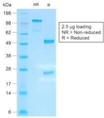 SDS-PAGE Analysis Purified IgG4 Recombinant Rabbit Monoclonal Antibody (IGHG4/2042R). Confirmation of Purity and Integrity of Antibody.