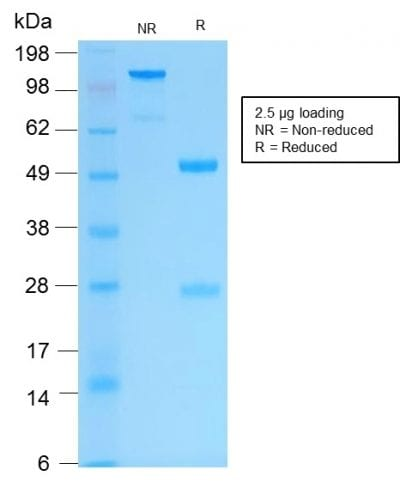 SDS-PAGE Analysis Purified Cytokeratin 16 Rabbit Recombinant Monoclonal Antibody (KRT16/2043R). Confirmation of Purity and Integrity of Antibody.