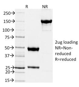 SDS-PAGE Analysis Purified TIMP2 Mouse Monoclonal Antibody (TIMP2/2044).Confirmation of Purity and Integrity of Antibody.