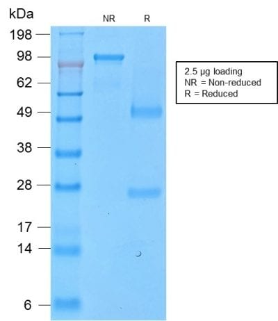 SDS-PAGE Analysis Purified CD43 Rabbit Recombinant Monoclonal Antibody (SPN/2049R). Confirmation of Purity and Integrity of Antibody.