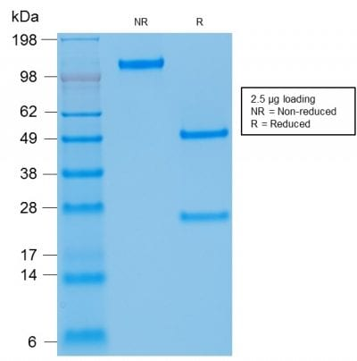 SDS-PAGE Analysis of Purified Kappa Light Chain Mouse Recombinant Monoclonal Ab (rKLC709).Confirmation of Purity and Integrity of Antibody.