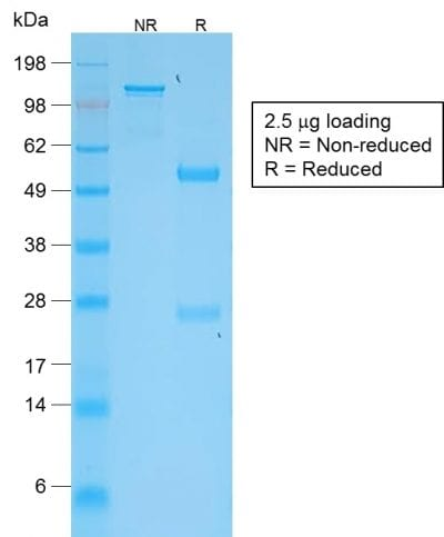 SDS-PAGE Analysis Purified VEGI Rabbit Monoclonal Antibody (VEGI /2052R). Confirmation of Purity and Integrity of Antibody.