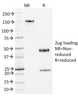 SDS-PAGE Analysis Purified Nucleophosmin Mouse Monoclonal Antibody (NA24).Confirmation of Purity and Integrity of Antibody.