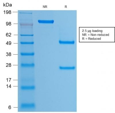 SDS-PAGE Analysis Purified HPV-16 Mouse Recombinant Monoclonal Antibody (rHPV16L1/1058). Confirmation of Purity and Integrity of Antibody.