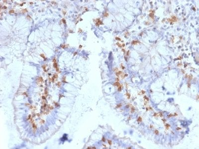 Formalin-fixed paraffin-embedded human Small Intestine stained with CD103 Mouse Monoclonal Antibody (ITGAE/2063).