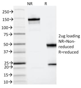 SDS-PAGE Analysis Purified CD123 Mouse Monoclonal Antibody (IL3RA/2065).Confirmation of Integrity and Purity Antibody.