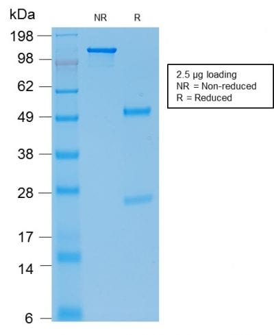 SDS-PAGE Analysis Purified E-Cadherin Mouse Recombinant Monoclonal Ab (rCDH1/1525). Confirmation of Purity and Integrity of Antibody.