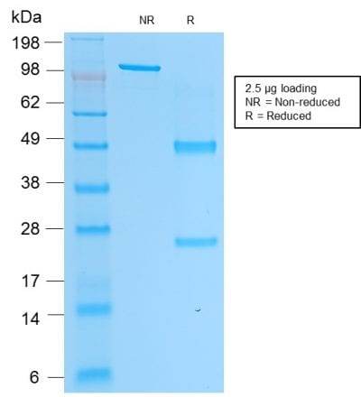 SDS-PAGE Analysis Purified PSAP Mouse Monoclonal Antibody (rACPP/1338). Confirmation of Purity and Integrity of Antibody.
