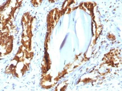 Formalin-fixed paraffin-embedded human Prostate Carcinoma stained with PSAP Mouse Recombinant Monoclonal Antibody (rACPP/1338).