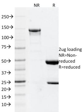SDS-PAGE Analysis Purified GFAP Mouse Monoclonal Antibody (GFAP/2076).Confirmation of Purity and Integrity of Antibody.