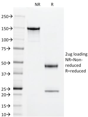 SDS-PAGE Analysis Purified Superoxide Dismutase 1 Mouse Monoclonal Antibody (SOD1/2089).Confirmation of Purity and Integrity of Antibody.