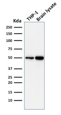 Western Blot Analysis of THP-1 Cell and human Brain Tissue Lysate using ATG5 Mouse Monoclonal Antibody (ATG5/2101).