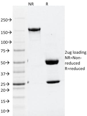 SDS-PAGE Analysis Purified ATG5 Mouse Monoclonal Antibody (ATG5/2101).Confirmation of Purity and Integrity of Antibody.