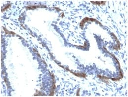 Formalin-fixed paraffin-embedded human Prostate stained with Cytokeratin 15 Rabbit Recombinant Monoclonal Ab (KRT15/2103R).