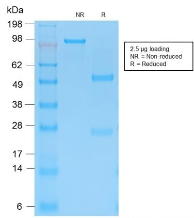 SDS-PAGE Analysis Purified Cytokeratin 15 Rabbit Recombinant Monoclonal Ab (KRT15/2103R). Confirmation of Purity and Integrity of Antibody.