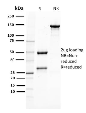 SDS-PAGE Analysis Purified PTEN Mouse Monoclonal Antibody (PTEN/2110).Confirmation of Purity and Integrity of Antibody.