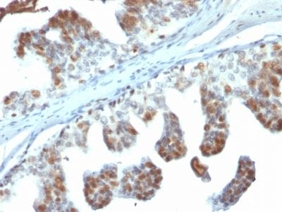 Formalin-fixed paraffin-embedded human Prostate Carcinoma stained with PTEN Mouse Monoclonal Antibody (PTEN/2110).