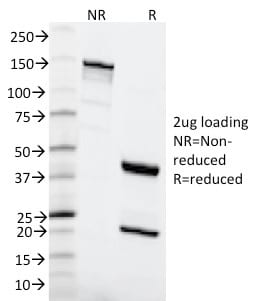 SDS-PAGE Analysis Purified MSH6 Mouse Monoclonal Antibody (MSH6/2111). Confirmation of Purity and Integrity.