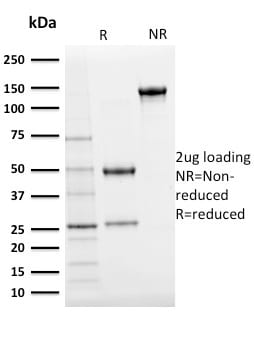 SDS–PAGE Analysis Purified Ubiquitin Mouse Monoclonal Antibody (UBB/2122).Confirmation of purity and integrity.
