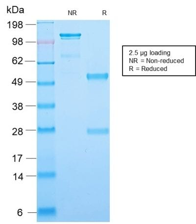 SDS-PAGE Analysis Purified Recombinant Rabbit Monoclonal Ab (MGB1/2123R) to Mammaglobin. Confirmation of Purity and Integrity of Antibody.