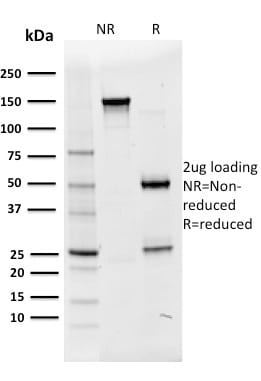 SDS-PAGE Analysis Purified Oct-2 Mouse Monoclonal Antibody (OCT2/2136).Confirmation of Purity and Integrity.