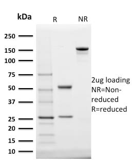 SDS-PAGE Analysis Purified StAR Mouse Monoclonal Antibody (STAR/2140).Confirmation of Purity and Integrity of Antibody.