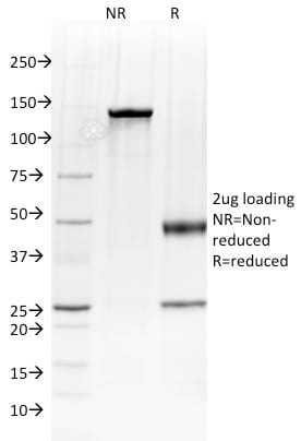 SDS-PAGE Analysis Purified Albumin Mouse Monoclonal Antibody (ALB/2144).Confirmation of Purity and Integrity of Antibody.