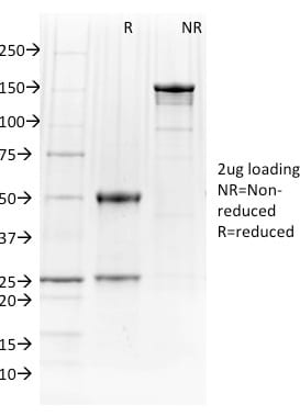 SDS-PAGE Analysis Purified PU.1 Mouse Monoclonal Antibody (PU1/2146).Confirmation of Purity and Integrity of Antibody.