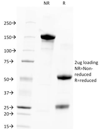 SDS-PAGE Analysis Purified TACSTD2 / TROP2 Mouse Monoclonal Antibody (TACSTD2/2151).Confirmation of Purity and Integrity of Antibody.