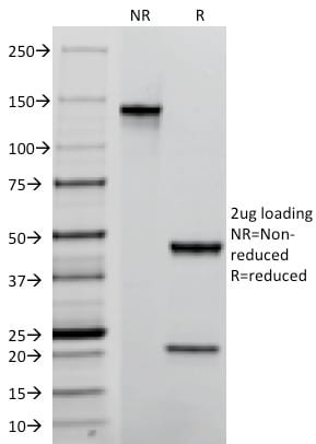 SDS-PAGE Analysis Purified TACSTD2 / TROP2 Mouse Monoclonal Antibody (TACSTD2/2152).Confirmation of Purity and Integrity of Antibody.