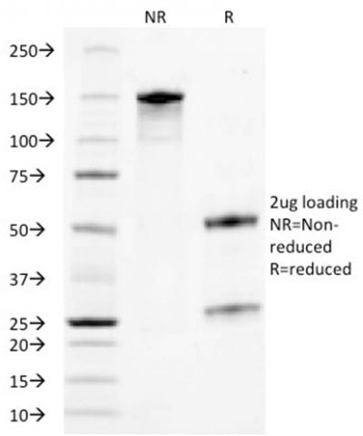 SDS-PAGE Analysis Purified TACSTD2 / TROP2Mouse Monoclonal Antibody (TACSTD2/2153).Confirmation of Purity and Integrity of Antibody.