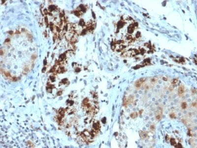 Formalin-fixed paraffin-embedded human Testicular Carcinoma stained with StAR Mouse Monoclonal Antibody (STAR/2154).
