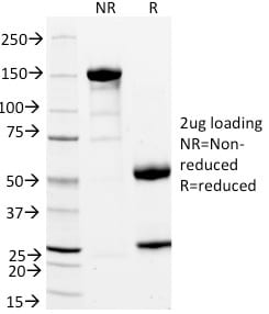 SDS-PAGE Analysis Purified StAR Mouse Monoclonal Antibody (STAR/2154).Confirmation of Purity and Integrity of Antibody.