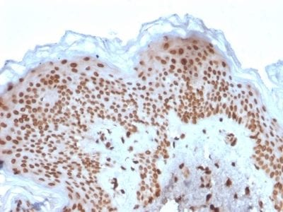Formalin-fixed paraffin-embedded human Basal Cell Carcinoma stained with Emerin Mouse Monoclonal Antibody (EMD/2167).