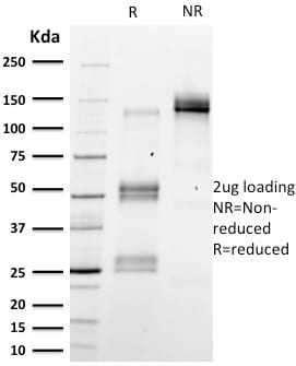 SDS-PAGE Analysis Purified Emerin Mouse Monoclonal Antibody (EMD/2167).Confirmation of Purity and Integrity of Antibody.
