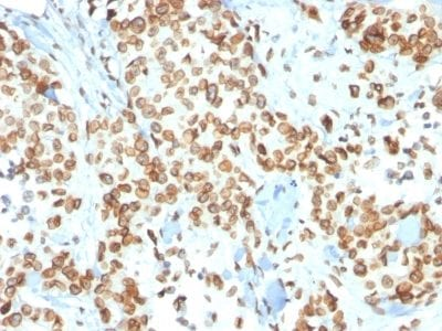 Formalin-fixed paraffin-embedded human Breast Carcinoma stained with Emerin Mouse Monoclonal Antibody (EMD/2167).