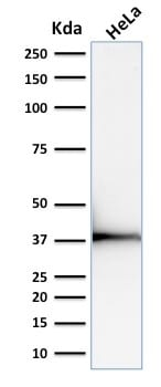 Western Blot Analysis of human HeLa Cell lysate using Emerin Mouse Monoclonal Antibody (EMD/2168).