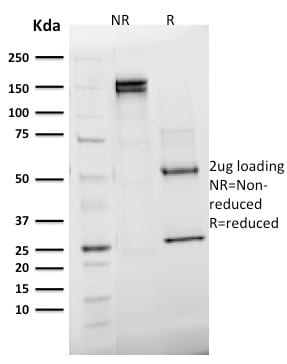 SDS-PAGE Analysis Purified Emerin Mouse Monoclonal Antibody (EMD/2168).Confirmation of Integrity and Purity of Antibody