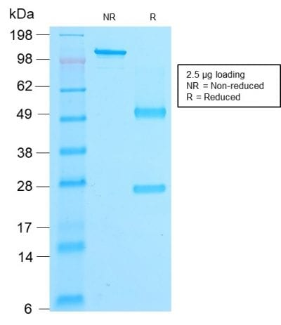 SDS-PAGE Analysis Purified Beta-Catenin Mouse Recombinant Monoclonal Ab (rCTNNB1/2173). Confirmation of Purity and Integrity of Antibody.
