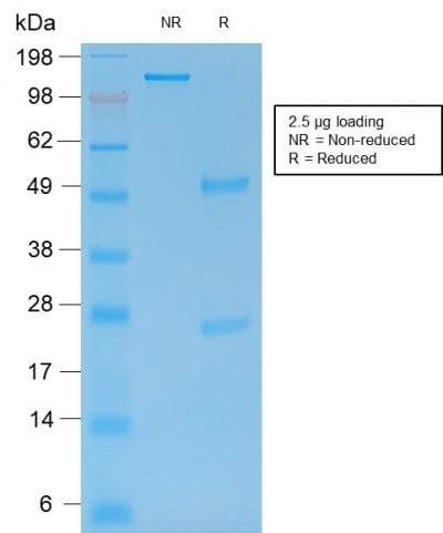 SDS-PAGE Analysis Purified MMP9 Mouse Recombinant Monoclonal Antibody (rMMP9/1769). Confirmation of Integrity of Purity of Antibody.