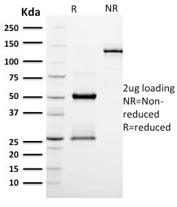 SDS-PAGE Analysis Purified EGFR Mouse Monoclonal Antibody (GFR/2596).Confirmation of Purity and Integrity of Antibody.